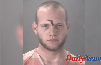 Florida Guy with state tattooed forehead calls 911 for ride home