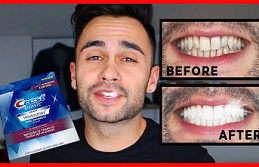 All You Need to Know About Teeth Whitening Strips