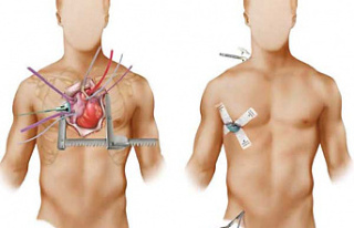 Keyhole Heart Surgery: The Top 5 Benefits