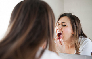 9 Serious Health Problems Caused by Bad Teeth