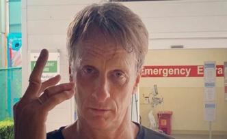 Tony Hawk shows moved Finger Skateboard-accident - view