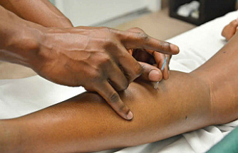How Acupuncture Can Help Ease Chronic Pain